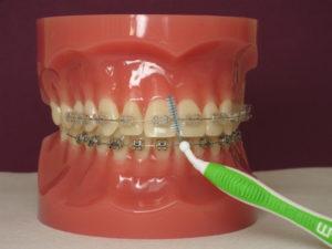Cabinet d'orthodontie des drs Labadie et Mehouas à Levallois Perret